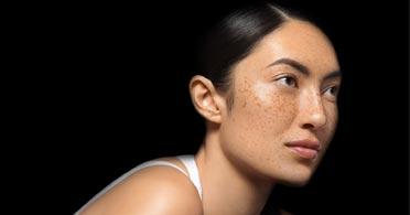 μύθοι για το λιπαρό δέρμα